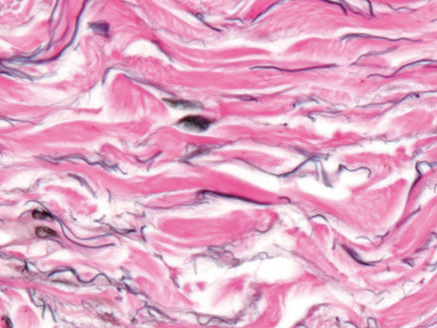 Collagen fibers support the fluid-filled channels that make up the interstitium.
