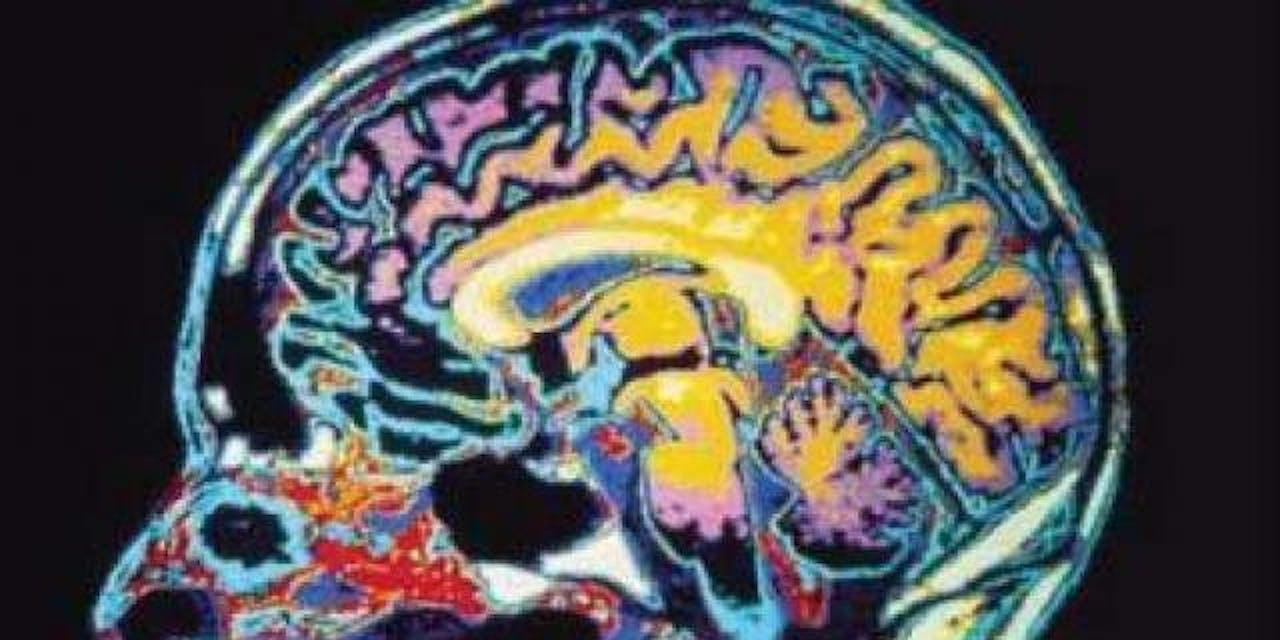 fear brain ptsd