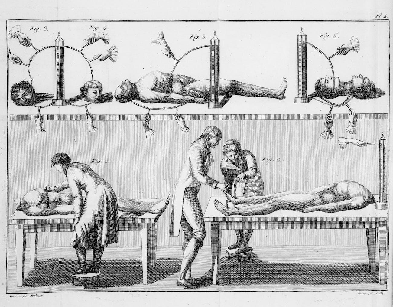 Giovanni Aldini's experiments with a human corpse.