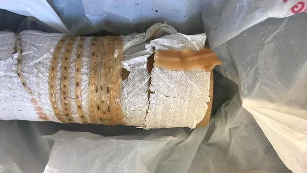 A 5-Foot Tapeworm Grew Inside a Man Because He Ate Too Much