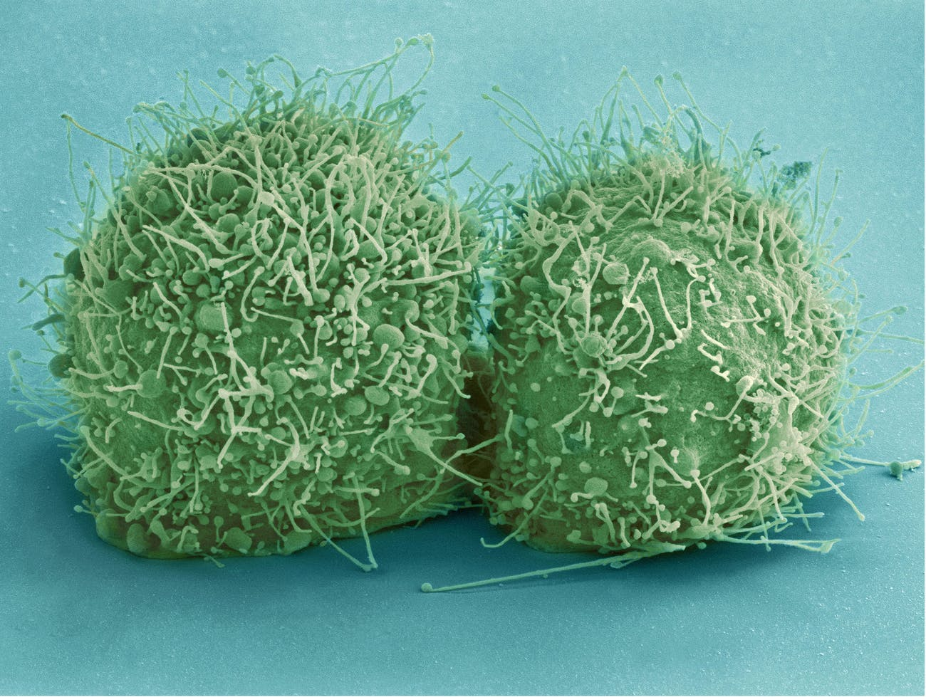 Scanning electron micrograph of just-divided HeLa cells.Zeiss Merlin HR-SEM.