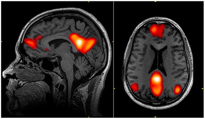 autopilot brain region