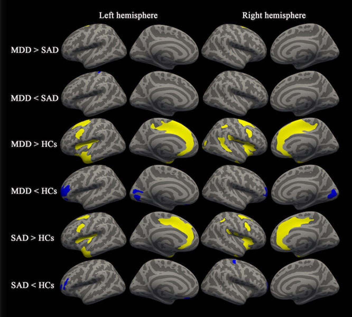 MRI Scans Reveal Differences in Brains of People With Anxiety and Depression