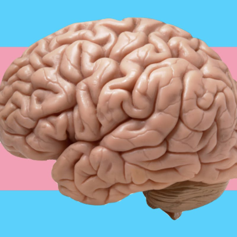 Brain Activity Of Transgender People Reveals A Way To End Gender