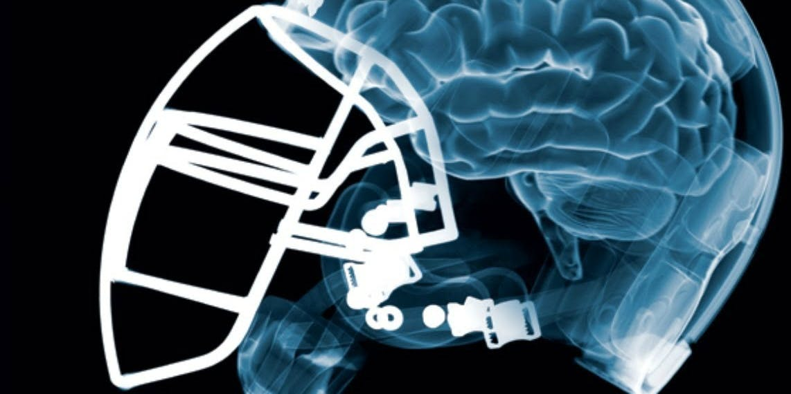 Science Argues NFL Players Are Not Dumb Jocks