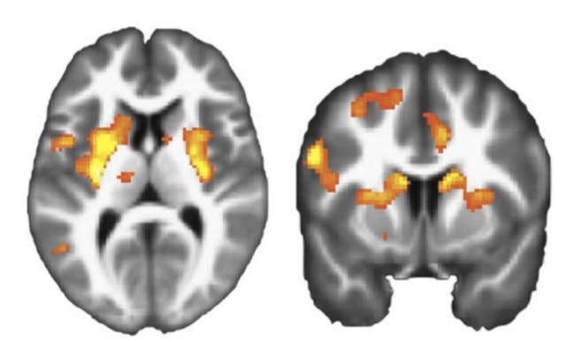 fMRI of dorsal striata