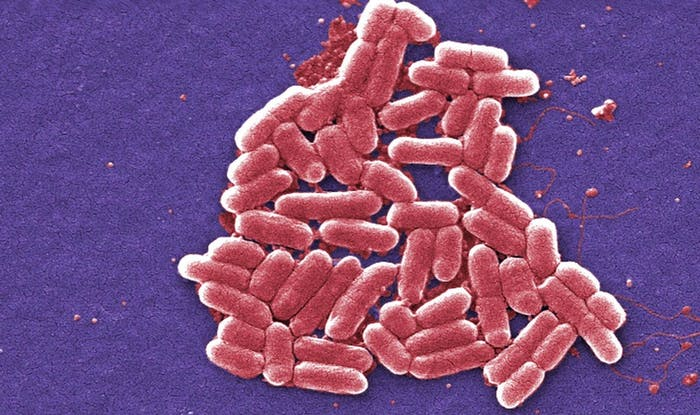 Shigella bacteria common to human feces, which can totally get on your comforter.