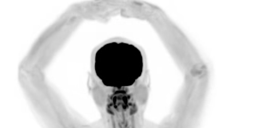 "Video Shows How First ""Total Body Scanner"" Leaves Nothing to the Imagination"