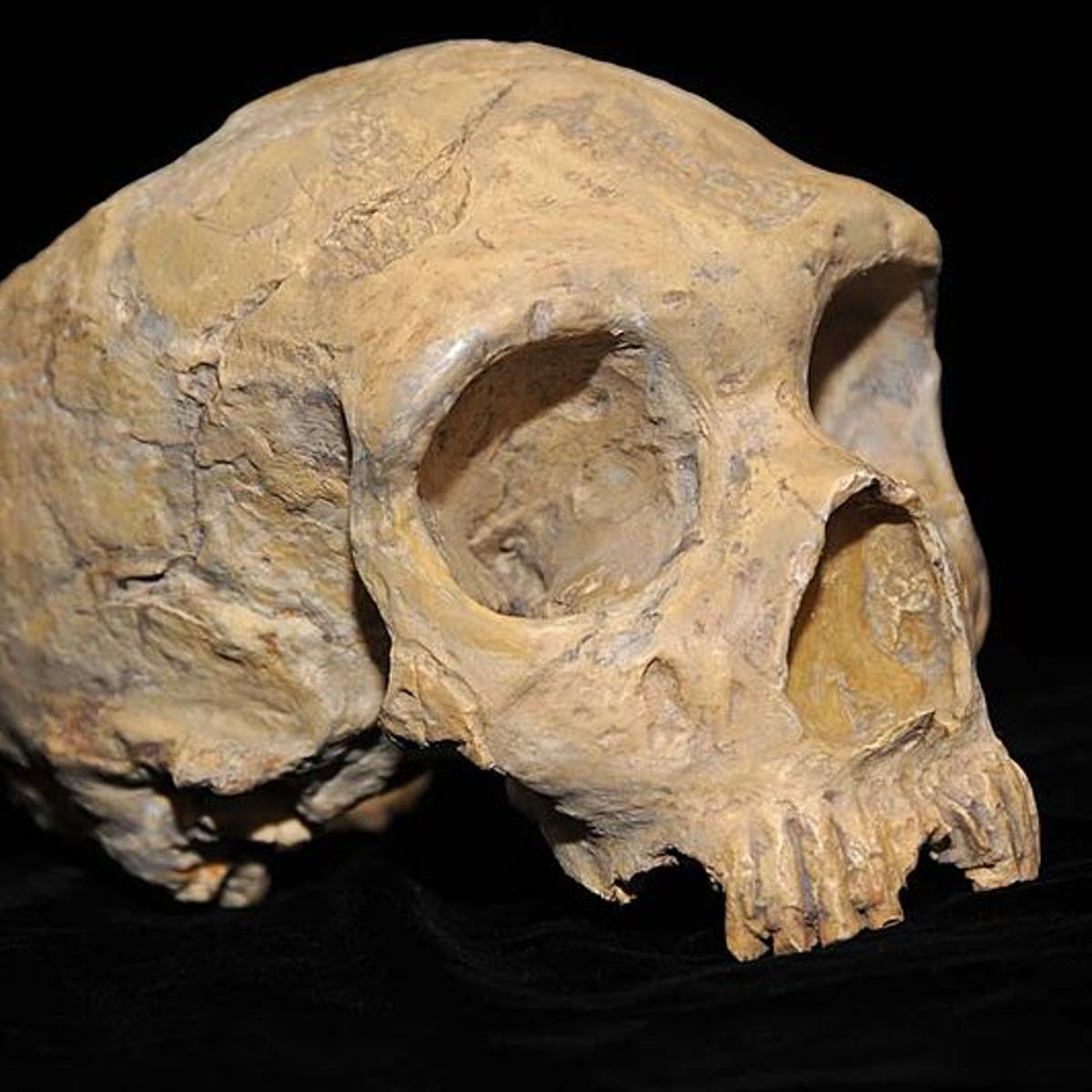 Key Differences in the Neanderthal Brain Reveal an Explanation for Extinction