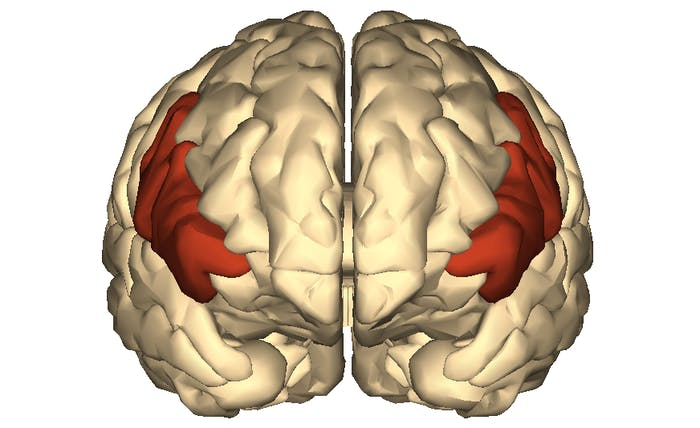 inferior frontal gyrus brain