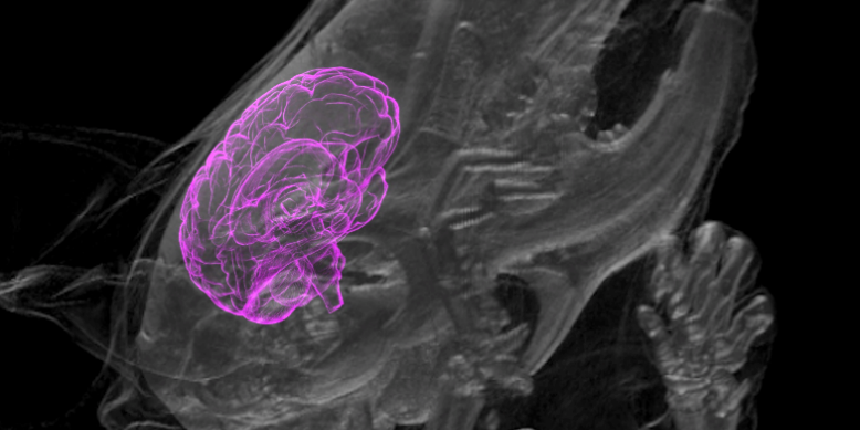 Human Mini-Brains Growing Inside Rat Bodies Are Starting to Integrate
