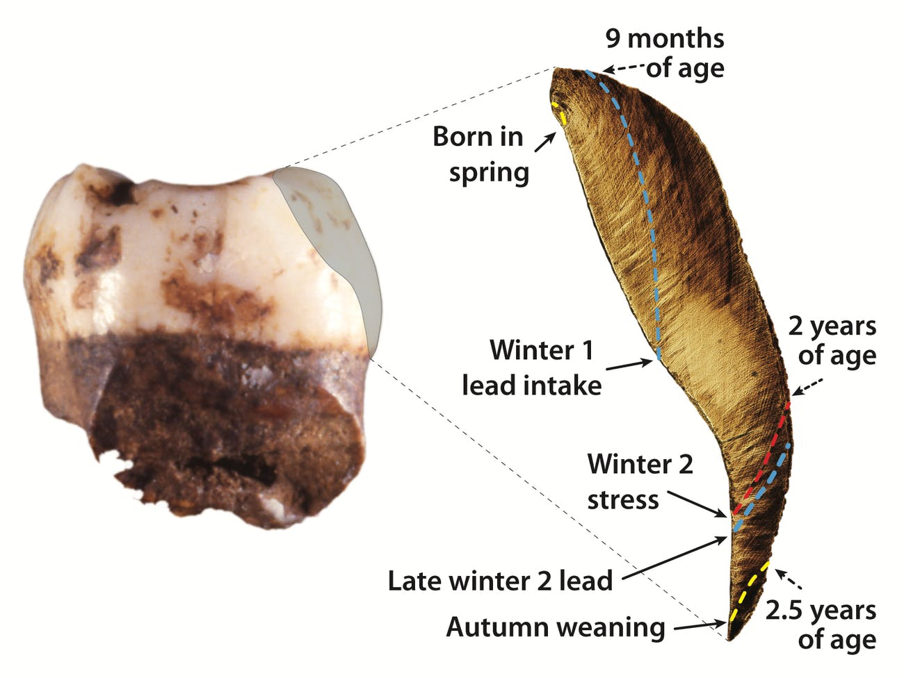 Neanderthal tooth