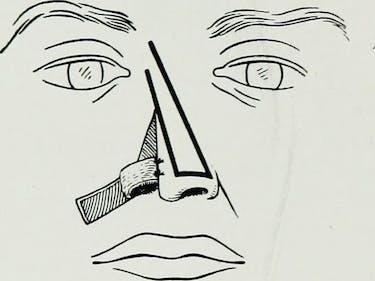 Rhinoplasty nose job surgery illustration body dysmorphia