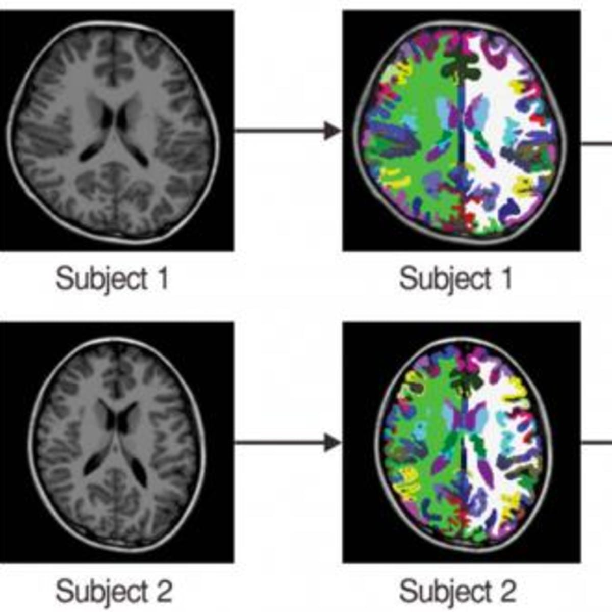 Mri Shows Brain Differences Among Adhd >> Study On The Brains Of Adhd Patients Has Implications For The