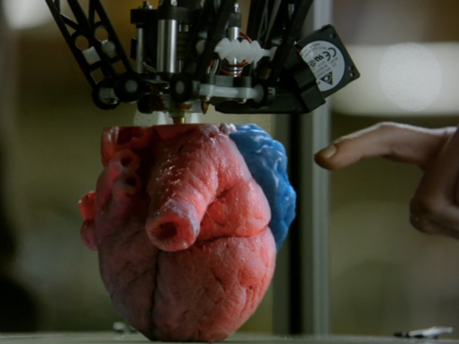 Infinite 3D-Printed Hearts of 'Pure Genius' Make Up for Bad Surgeons