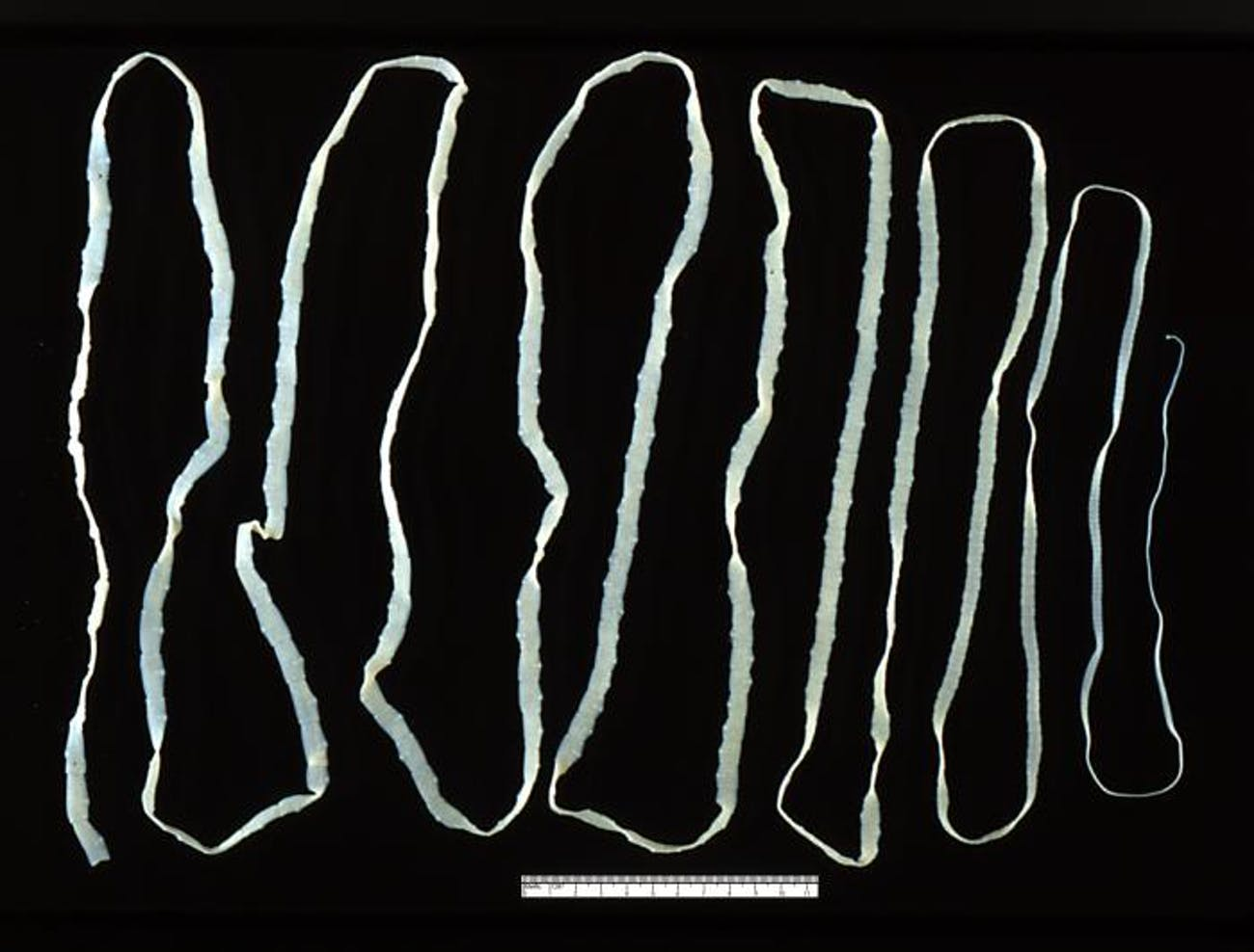 an overview of the species of tapeworms Tapeworms are ribbonlike, segmented flatworms that parasitize humans the vast majority of tapeworm infections are caused by ingestion of undercooked or raw meat or fish tapeworms range in size from a few centimeters to a dozen meters depending on species.