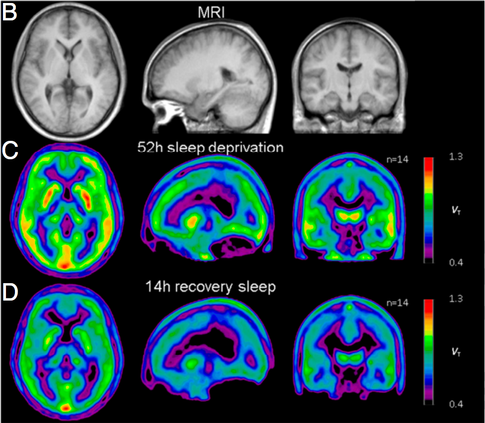 sleep deprivation Biology 202 2001 third web report on serendip the effects of sleep deprivation on brain and behavior by sl sleep deprivation is.