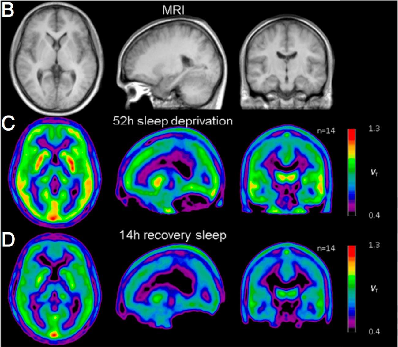 PET scan A1AR disgrams