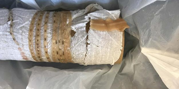 Sushi-Obsessed Man Pulls 5-Foot Tapeworm Out of His Rectum