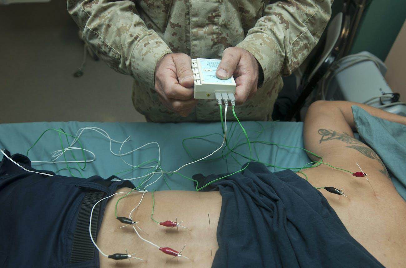 electric stimulation acupuncture back shoulders