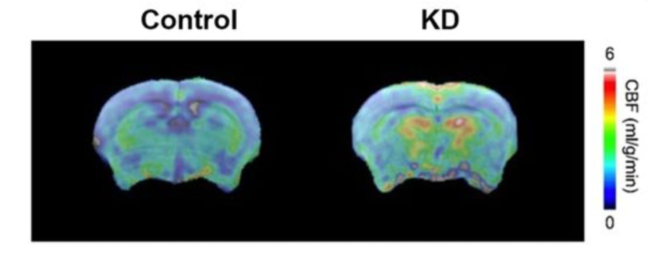 keto diet brain health aging