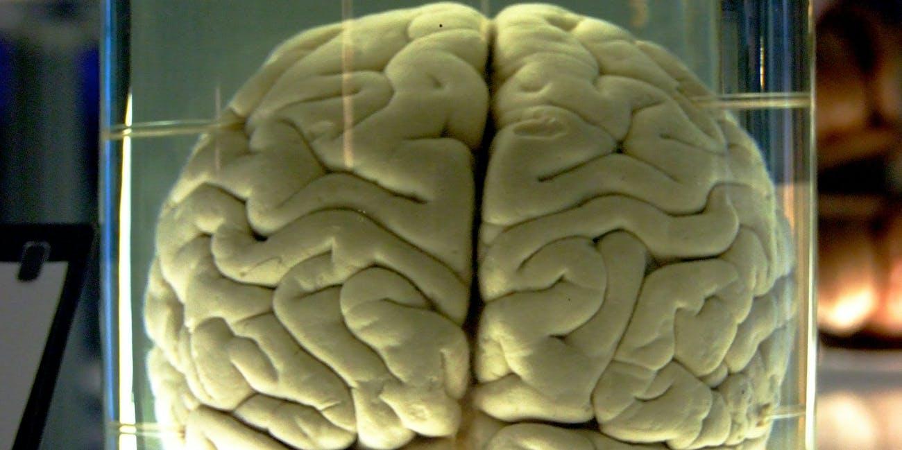 Chimp Brain in a jar