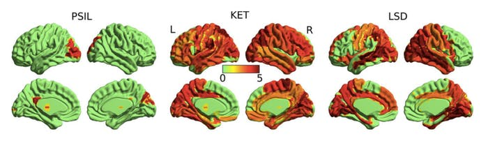 """""""Neural signal diversity"""" -- a measure of brain activity that is linked to consciousness -- differs in brains on psilocybin, ketamine, and LSD."""