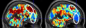 brain scans suicide attempters