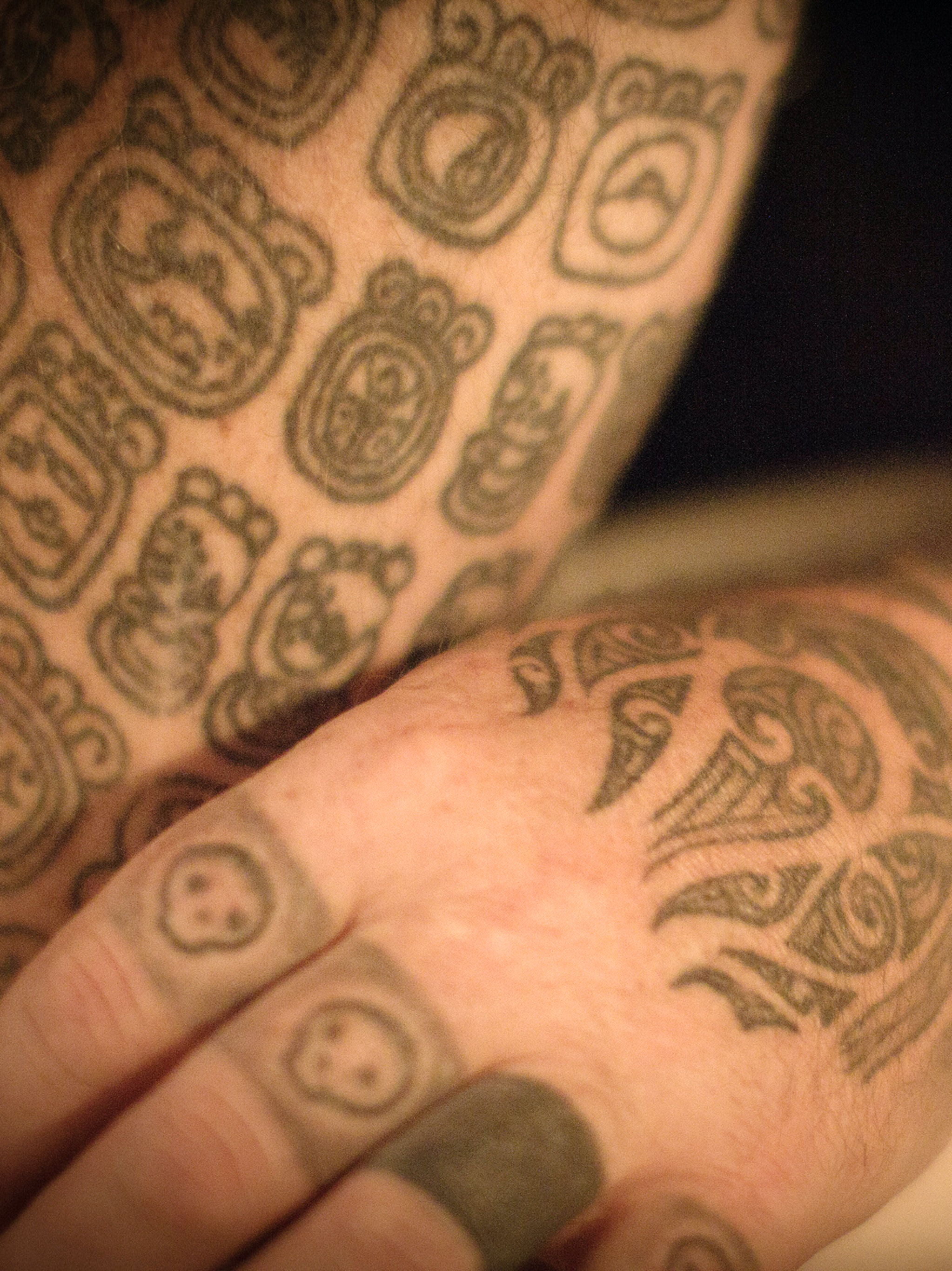 The science of tattoo removal cream just left the world of for Tattoo removal products