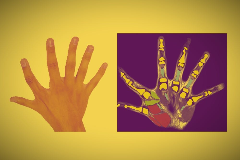 6-Fingered Family's Impressive Dexterity Suggests We All Need an Extra Digit