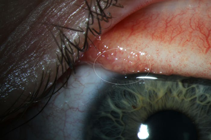 Here's the small T. gulosa worm in Abby Beckley's conjunctiva.