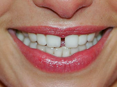 Your Teeth Hold the Secret to Super Strong Computer Chips