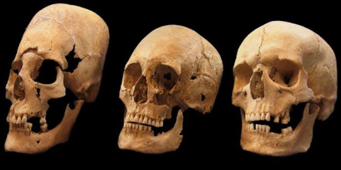 elongated skulls found in Bavaria