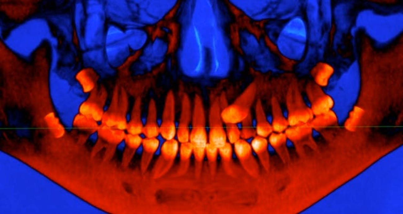 Wisdom teeth development, xray