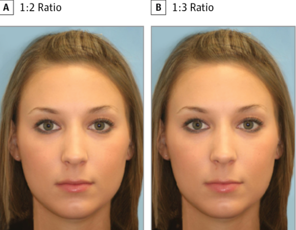 Science suggests the lips on the left are more attractive than the lips on the right.