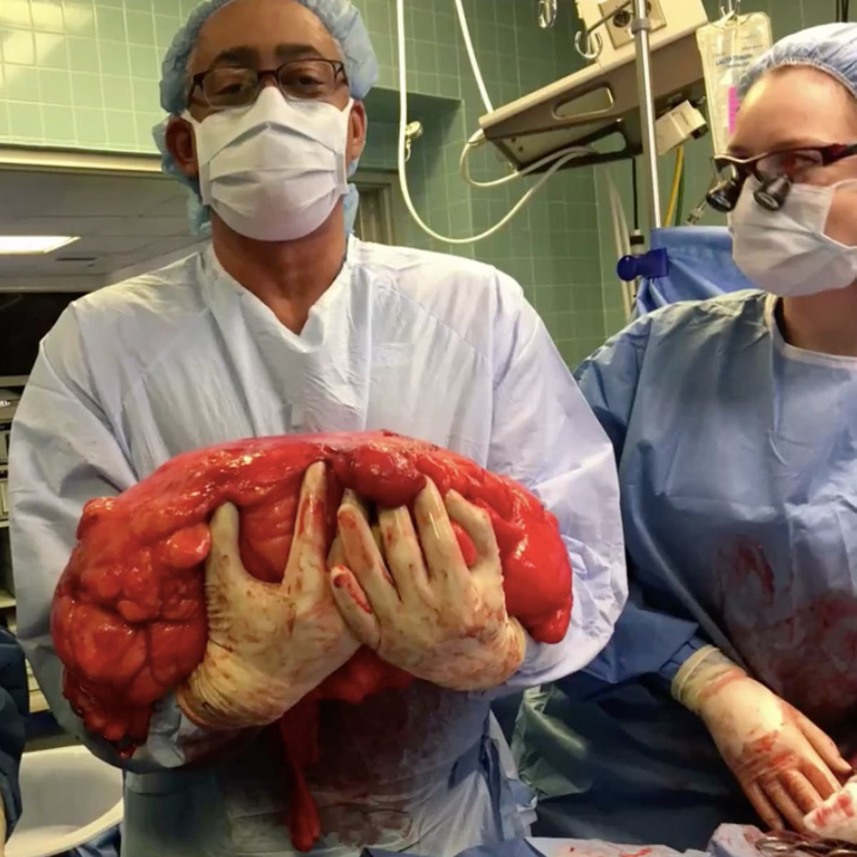 "Man Assumed 30-Pound Tumor Removed From His Stomach Was Just a ""Beer Belly"""
