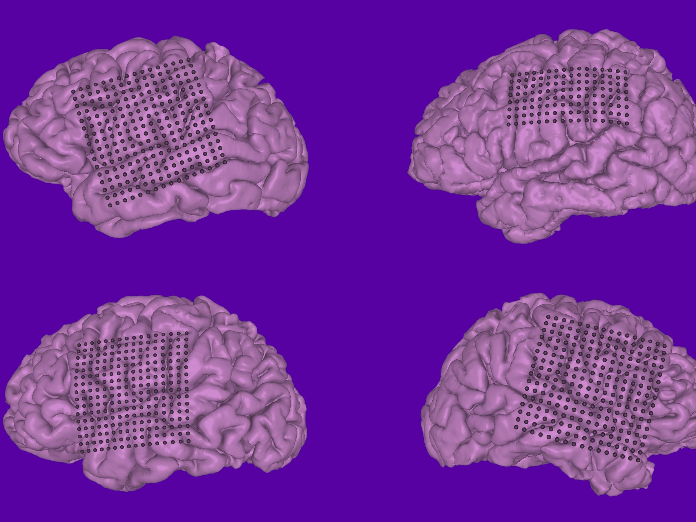 Neuroprosthetics: Doctors Decode Human Speech From Brain