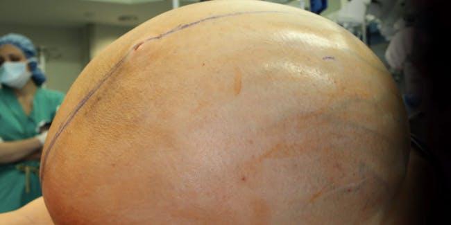 mucinous tumor