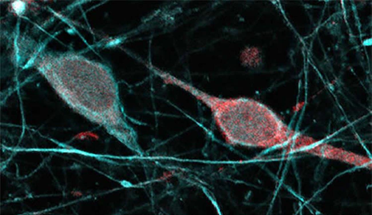dopamine-expressing neurons