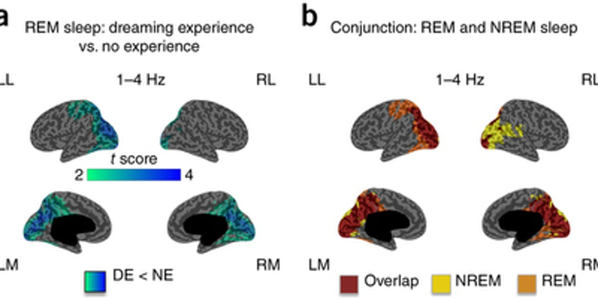 Brain models demonstrating the difference between a dreaming experience and no experience.