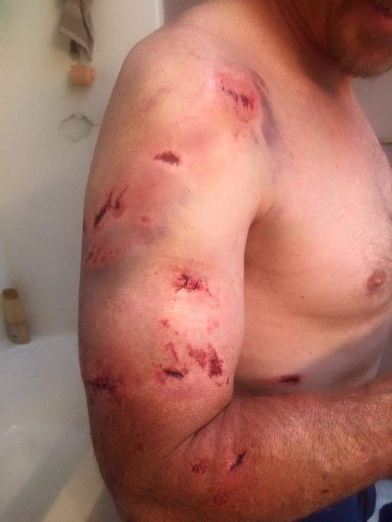 Todd Orr Bear Attack