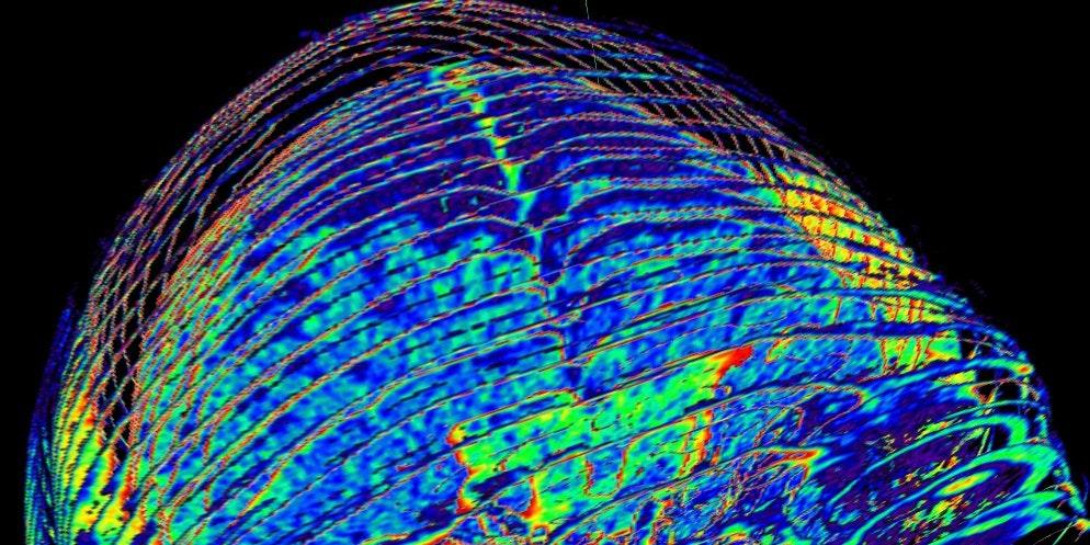 "LSD Study Reveals Unprecedented ""Harmonic"" Reorganization of Brain"