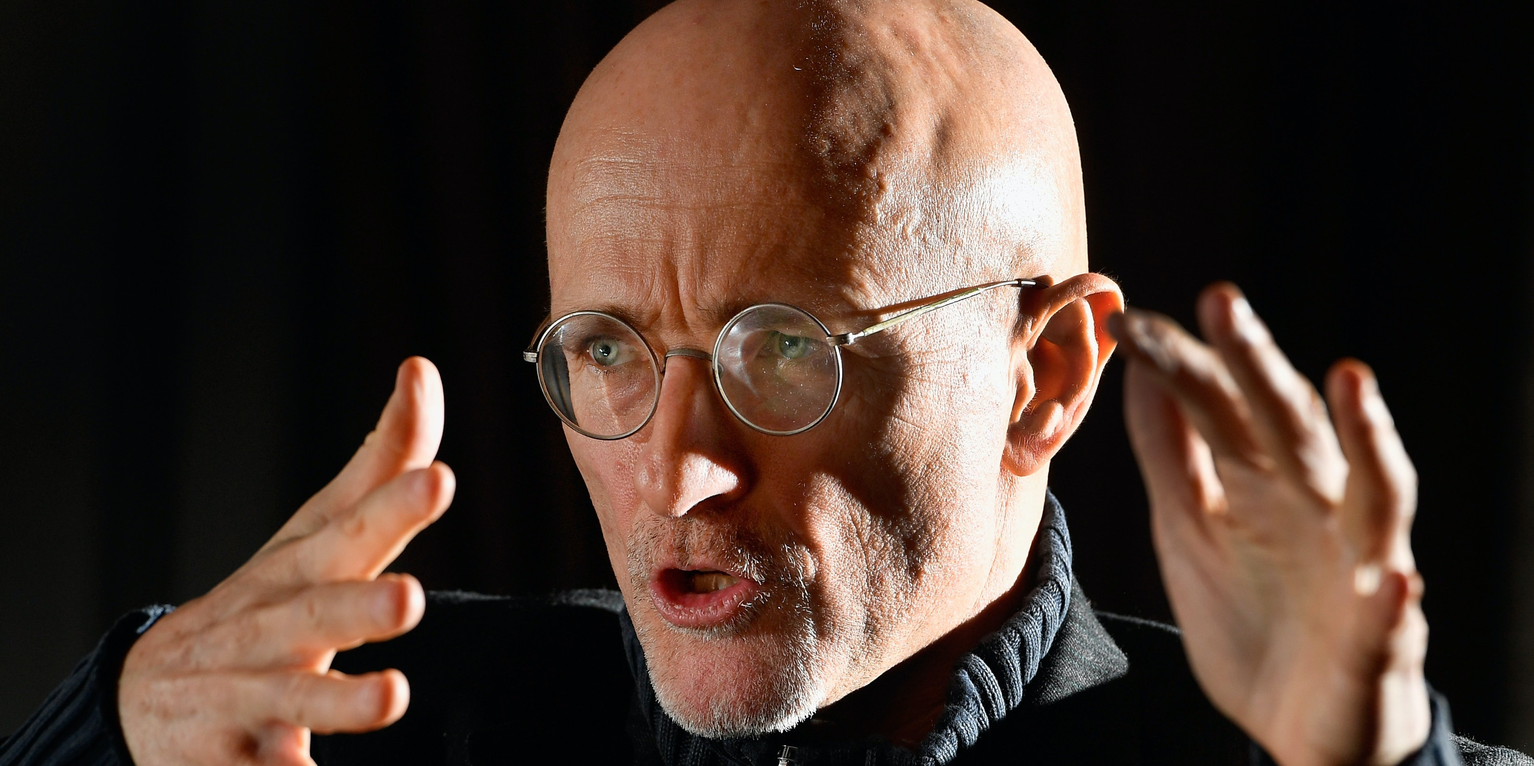 Scientist Has Performed a Human Head Transplant, But There's a Catch
