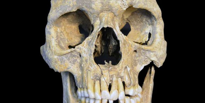 Skeletal remains, HBV, Stone Age